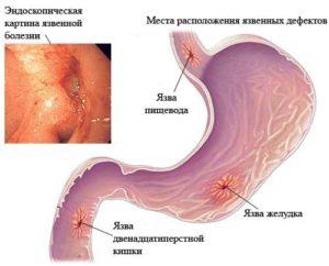 антибиотики принимать при язве желудка и двенадцатиперстной кишки
