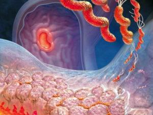 аутоиммунного гастрита желудка