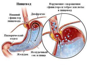 лечение гастроэзофагеального рефлюкса у детей