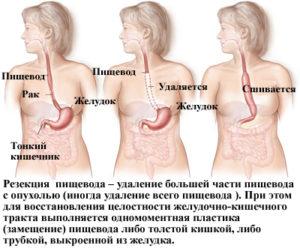 Почему болит пищевод в грудной части и лечение