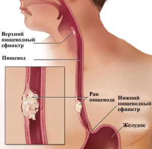 Факторы, способствующие развитию эзофагита