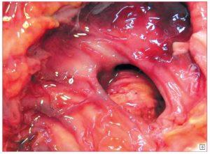 Симптомы и лечение эрозии кишечника