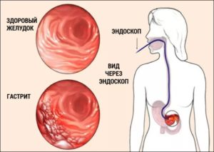 Симптомы и лечение эрозивно-геморрагического гастрита