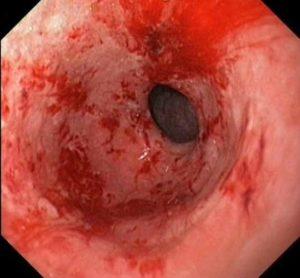 лечение эрозивно-геморрагического гастрита
