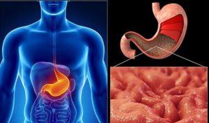 Симптомы и лечение гиперпластического гастрита