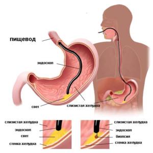 лечение неатрофического гастрита