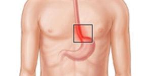 воспаления пищевода