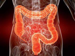 проверить кишечник на онкологию