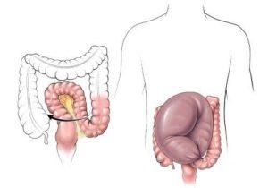 долихосигма кишечника