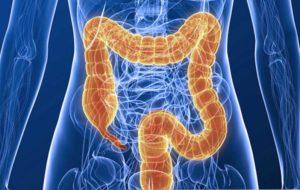 неспецифический язвенный колит кишечника