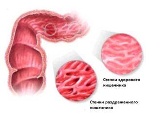 синдром воспаленного кишечника