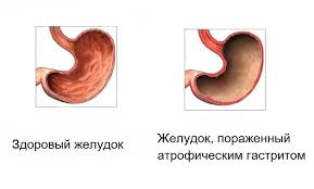 субатрофический гастрит желудка