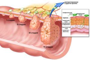 рак пищевода 3 степени
